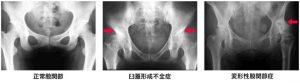 股関節のレントゲン写真