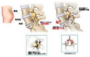 腰椎分離症 イメージ