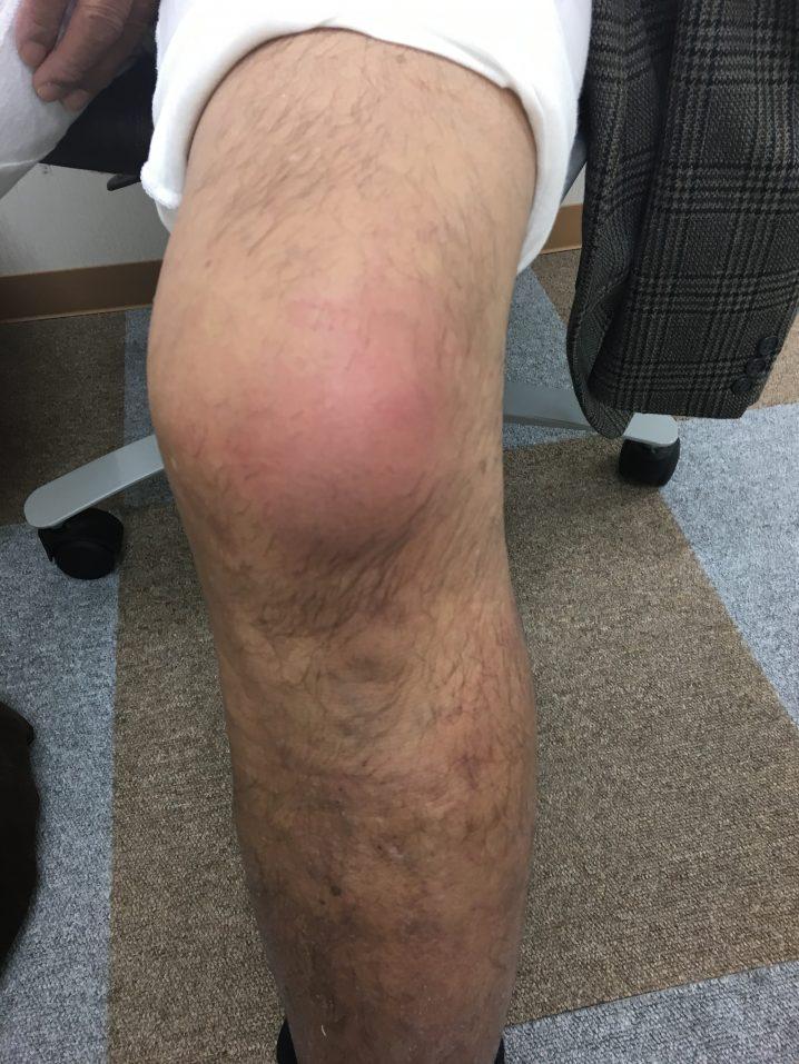 膝 CRPS