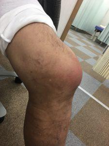 膝の外観 内側