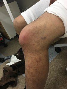 膝の外観 外側