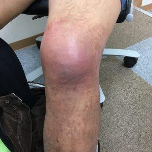 膝の怪我の経過 正面