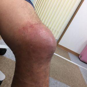 膝の怪我の経過 内側