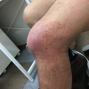 膝の怪我の経過 外側