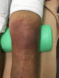 膝のCRPS症状 正面