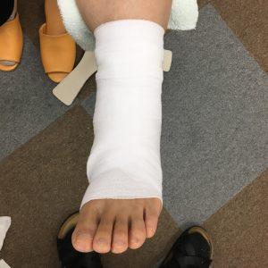足くびの固定後 正面