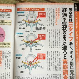 脊柱管狭窄症のタイプ