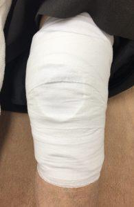 膝のプライトン固定後