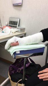 橈骨神経麻痺に対する背屈位固定