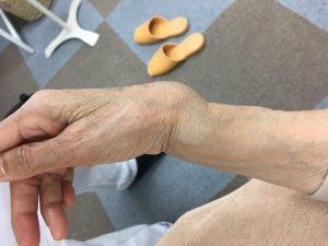骨折の変形 側面