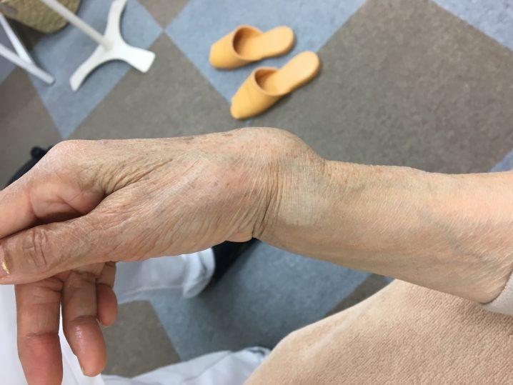 手首の骨折 整復前