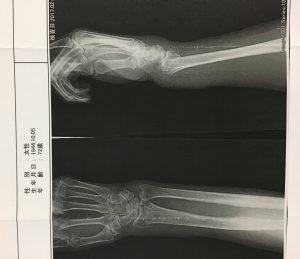 骨折 整復後のレントゲン写真
