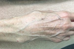 手首の骨折