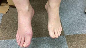 右足のCRPS
