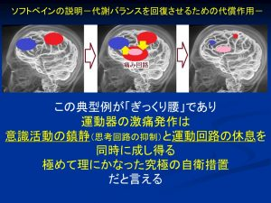 痛みの出現に関与する脳の働き