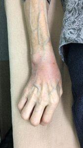 手首を捻挫した女性の手 正面