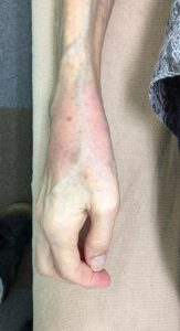 手首を捻挫した女性の手 側面
