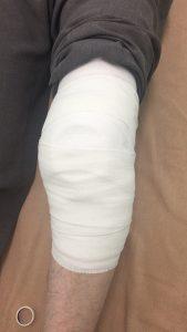 膝の固定後の様子