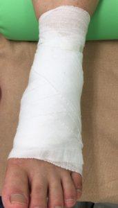 足の包帯固定