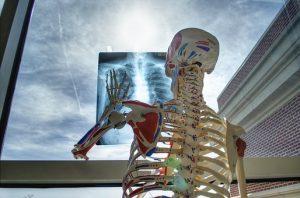 背骨のレントゲン