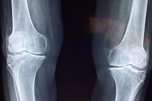 膝のレントゲン写真