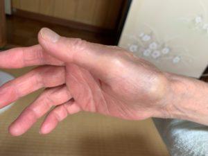 ばね指で腫れている状態