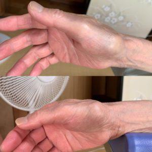 腫れの状態の比較写真