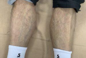 筋委縮を起こしている足